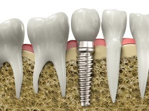 What does the Dental Implant process entail_